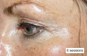 Eye Rejuvenation and Carboxytherapy -  Eye Lids and Dark circles after 6 sessions. Weekly spaced