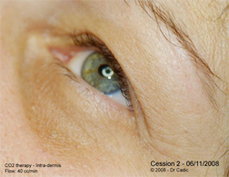 Eye Rejuvenation and carboxytherapy after 6 sessions. Monthly spaced